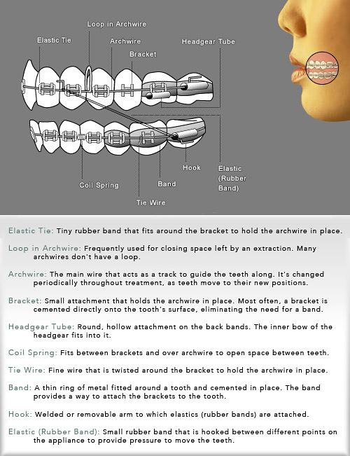 Ortho Diagram & Glossary - Clarity Orthodontics